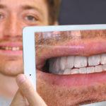 Стартап хочет принести дополненную реальность в кабинеты стоматологов.